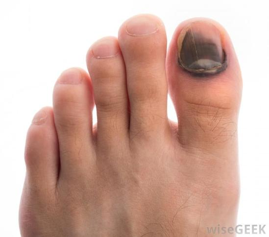 Help for a bruised toenail comes from WiseGeek.com